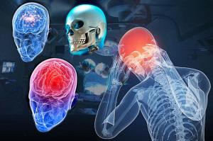пересадка головы человека
